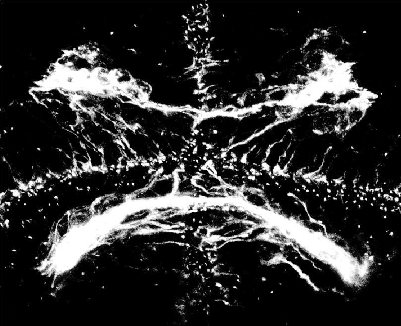 Image of the post-optic commissure in a zebrafish embryo